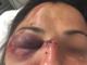 l'attivista No Tav rimasta ferita