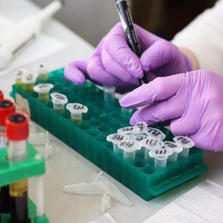 Coronavirus, 61 decessi oggi in Piemonte. 88 le persone guarite