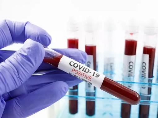 Covid, in Piemonte i ricoverati in terapia intensiva sono 140. Circa novemila in isolamento domiciliare