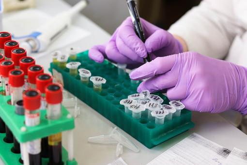 Coronavirus, in Piemonte 78 i decessi comunicati nella giornata odierna, ma i guariti sono più del triplo (276)