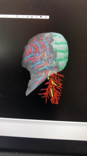 """Molinette, tumore ai polmoni asportato da """"Leonardo"""" grazie a una ricostruzione in 3D"""