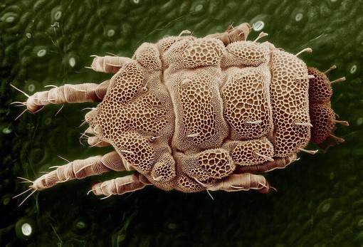 10 segni che dovrebbero farvi pensare che state ospitando dei parassiti nel vostro corpo