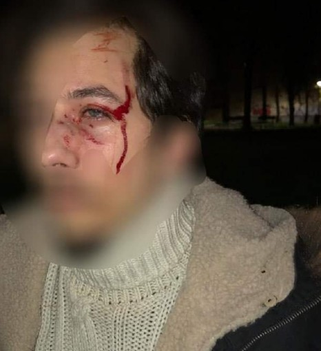 """Torino, la denuncia di due militanti di destra: """"Aggrediti sotto casa da 15 persone dei centri sociali"""""""